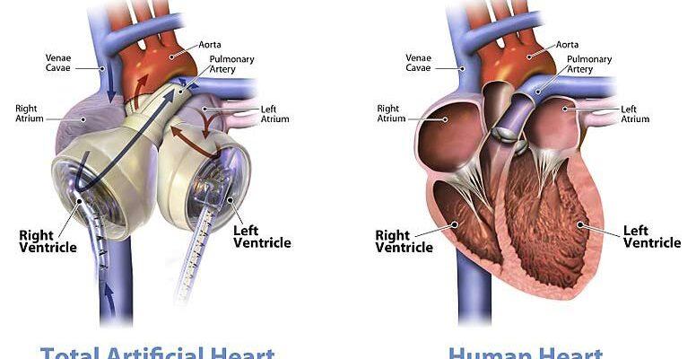 Permanent Artificial Heart – History | Mechanism | Options